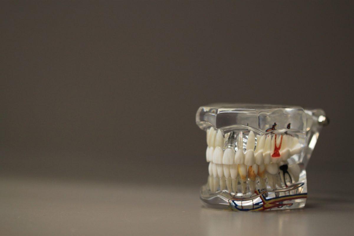 Zła metoda odżywiania się to większe niedobory w jamie ustnej oraz także ich utratę